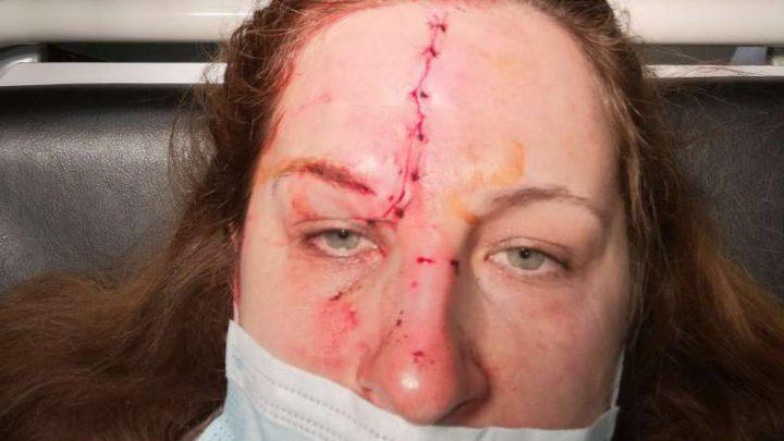 Ez történt a buszon utazó hölggyel, mert egy szabálytalan biciklis miatt vészfékezett a busz. Keresik a kerékpárost